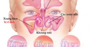 Tìm hiểu về bệnh viêm xoang cấp