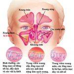 Những biến chứng nguy hiểm của bệnh viêm xoang