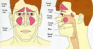 Những điều cần biết về bệnh viêm mũi, viêm xoang